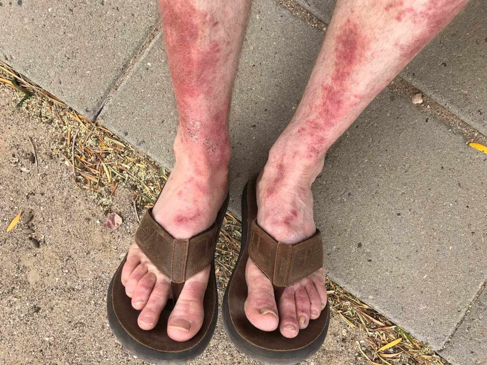 Rash from Poison Ivy